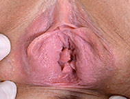 Sami, 23 years girl gyno exam. Inspection with blood pressure, feet, doppler, both holes exam, vaginal douche, urethral smear, two speculums, vibrator